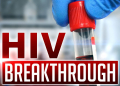 HIV Cure